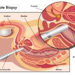 ביופסיית פיוז'ן – מה ההבדל בינה לביופסיה רגילה?